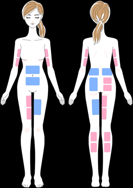 脂肪冷却の施術部位の図